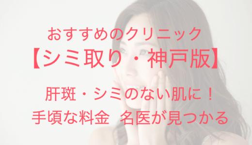 【神戸】シミ取り放題で肝斑・シミのない肌に!安くて上手なおすすめクリニック!