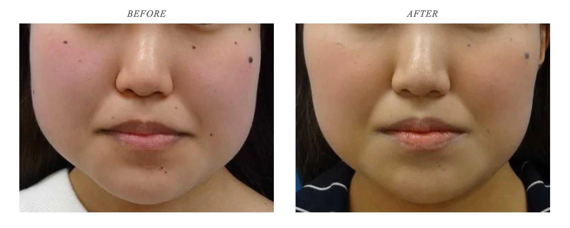 東京中央美容外科 ボトックス注射 症例