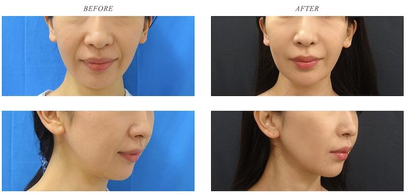 東京中央美容外科 ヒアルロン酸注射 症例